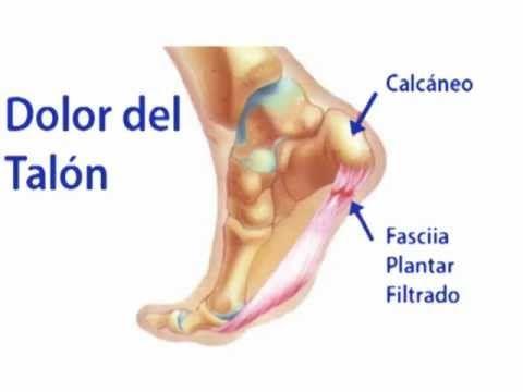 Dolor del Talon - Podólogo en Norte de NJ y Passaic Condado - http://solucionparaelacne.org/blog/dolor-del-talon-podologo-en-norte-de-nj-y-passaic-condado/