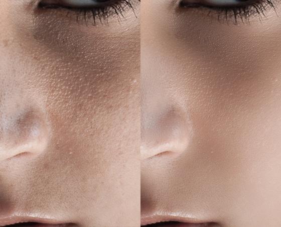 """Hautretusche  1. 2 Kopien der Hintergrundebene > 2. Kopie ausblenden > 1. Kopie invertieren > Modus auf """"strahlendes Licht"""" setzen > Hochpassfilter anwenden (bis die Haut angenehm aussieht) >  Gaußschen Weichzeichner anwenden (bis Poren wieder hervorkommen) > im Ebebenenstil: Ausblenden Grau (mit gedrückter alt Taste) die Regler von Schwarz und Weiß gegeneinander verschieben  2. zweite Ebene einblenden > Modus """"weiches Licht"""" setzen > Hochpassfilter (um noch mehr Poren sichtbar zu machen)"""