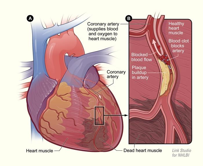 clear-up-clogged-arteries-eliminate-bad-cholesterol-with-this-natural-remedy