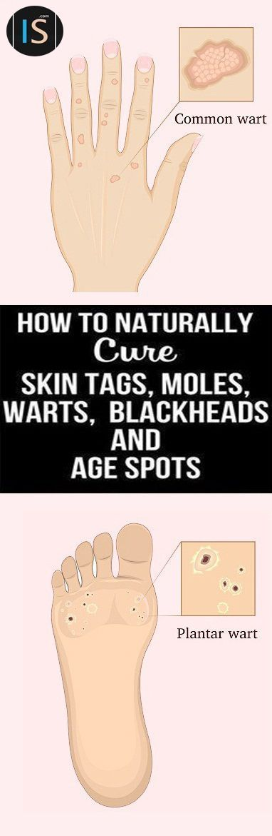 11 Natural Remedies for Common Skin Problems You Must Try - INFOSTYLES  http://www.wartalooza.com/treatments/15-best-essential-oils-treat