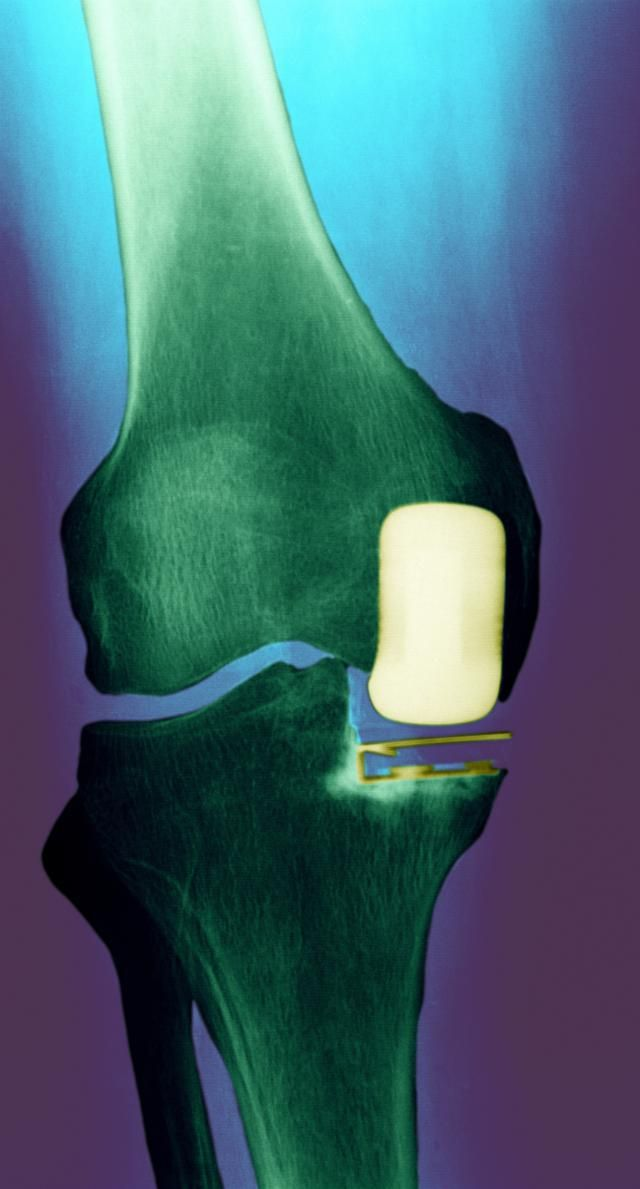 Is Partial Knee Replacement Surgery Right for You?: A partial knee replacement does not resurface the entire joint.