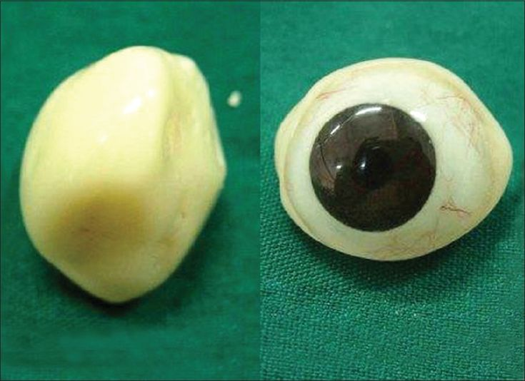 Figure 5: Completed ocular prosthesis