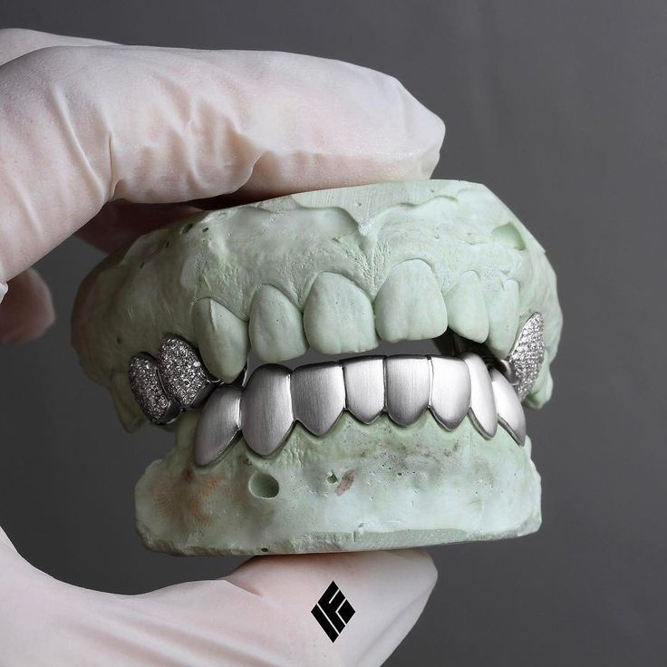 14K white gold satin finished bottom 8 grills with 2x2 teeth fully iced out upper caps custom made for @andreysand.  #Grillz #CustomJewelry #IFANDCO