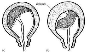 article on pit for delivering placenta