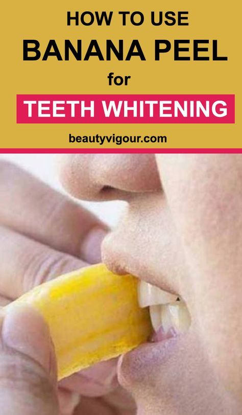 How to Use Banana Peel for Teeth Whitening