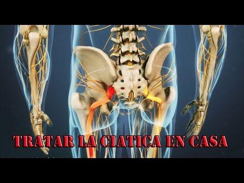61 best NERVIO CIATICO images on Pinterest   Nervios, Salud y ...