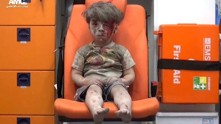 A very famous picture of a boy who has been burnt and hurt by attacks in his country. If he and his family were allowed to immigrate and go to a different country none of this would have to happen.