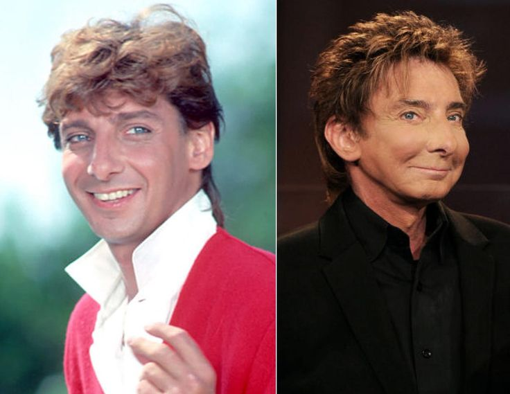 Barry Manilow's music is timeless but his face on the other hand ...