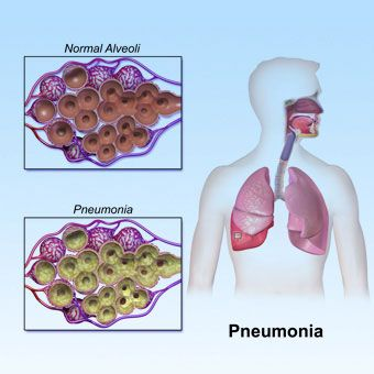 Pneumonia Symptoms, Treatment, Causes - What are the different ...