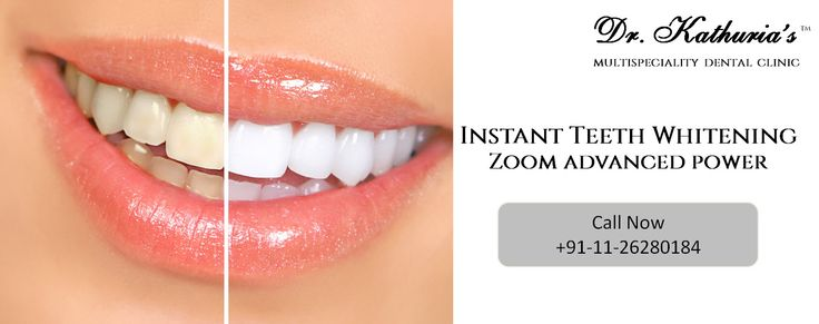 Instant Zoom #TeethWhitening at Dr. Kathuria's Multispeciality Dental Clinic #DelhiDental
