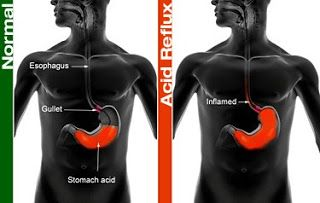 Acid Reflux Home Remedies-Interesting articles on improving health.
