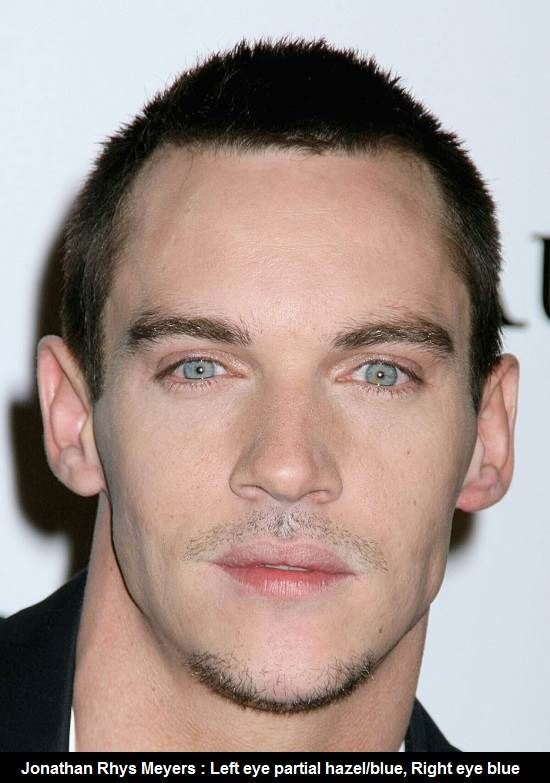 08 Jonathan Rhys Meyers With Heterochromia Eyes Zarcos Y