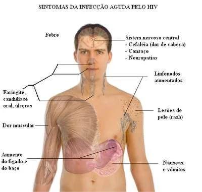 SINTOMAS DO HIV - AIDS » MD.Saúde