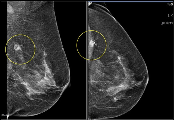 "When you visit a doctor for doing the mammogram test and find some abnormal things in your breast, please understand that it doesn't always involve with the cancer. Breast calcification is also one condition that might occur on the test report. Learn more by clicking ""Visit"". Don't be afraid to see the doctor for checking your breasts when you notice an abnormal sign. Daily nourishment with natural breast care products is the thing you shouldn't overlook!"