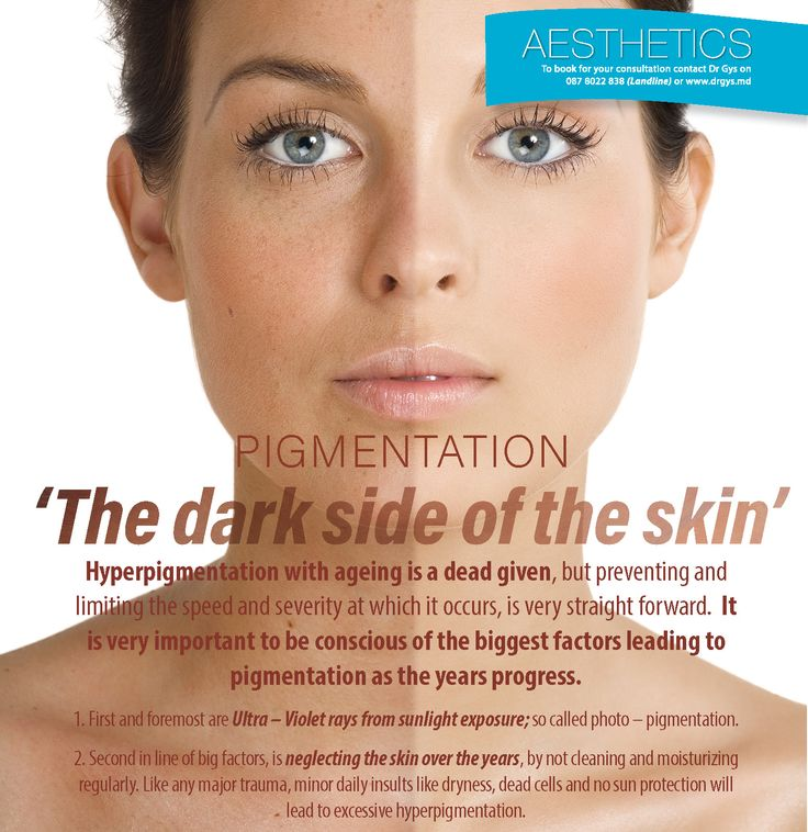 #Pigmentation: 'The dark side of the #skin' #Hyperpigmentation with ageing is a dead given, but preventing and limiting the speed and severity at which it occurs, is very straight forward. It is very important to be conscious of the biggest factors leading to pigmentation as the year's progress. 1. First and foremost are Ultra – Violet rays from #sunlight exposure; so called photo – pigmentation. 2. Second in line of big factors, is neglecting the skin over the years, by not cleaning and…