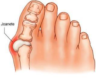 Como eliminar os joanetes sem cirurgia. O joanete é conhecido como aquela inflamação óssea do dedo grande do pé provocada por diversos fatores. Foi reconhecido cientificamente que o primeiro deles é a forma do pé: as pessoas que têm o dedo ...
