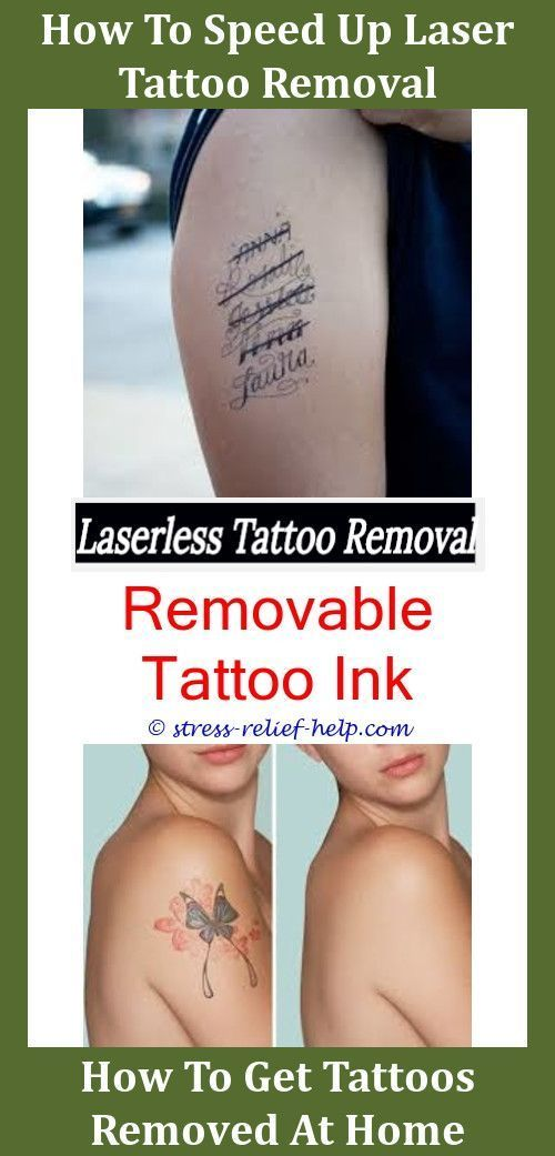 Tattoo Removal Treatment How To Remove A New Tattoo At Home Tattoo
