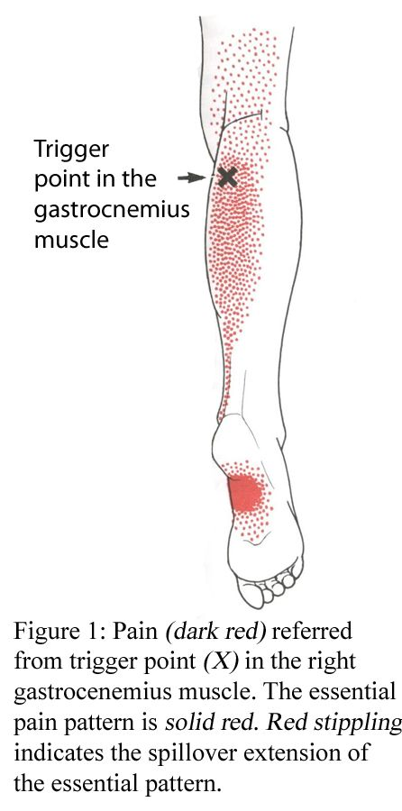 Trigger Point in Gastrocnemius Muscle Diag