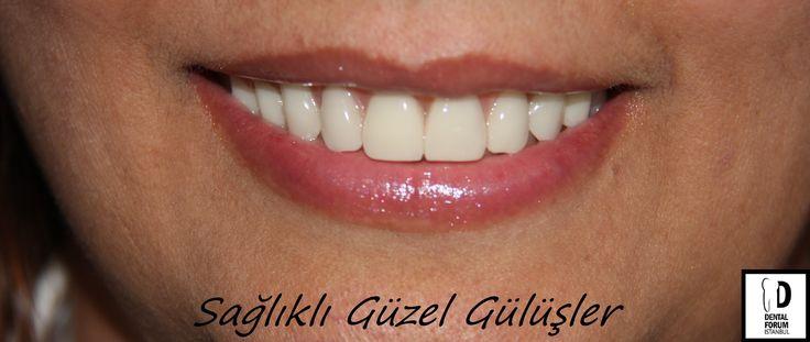 Sağlıklı Güzel Gülüşler-Healthy Beautiful Smiles.