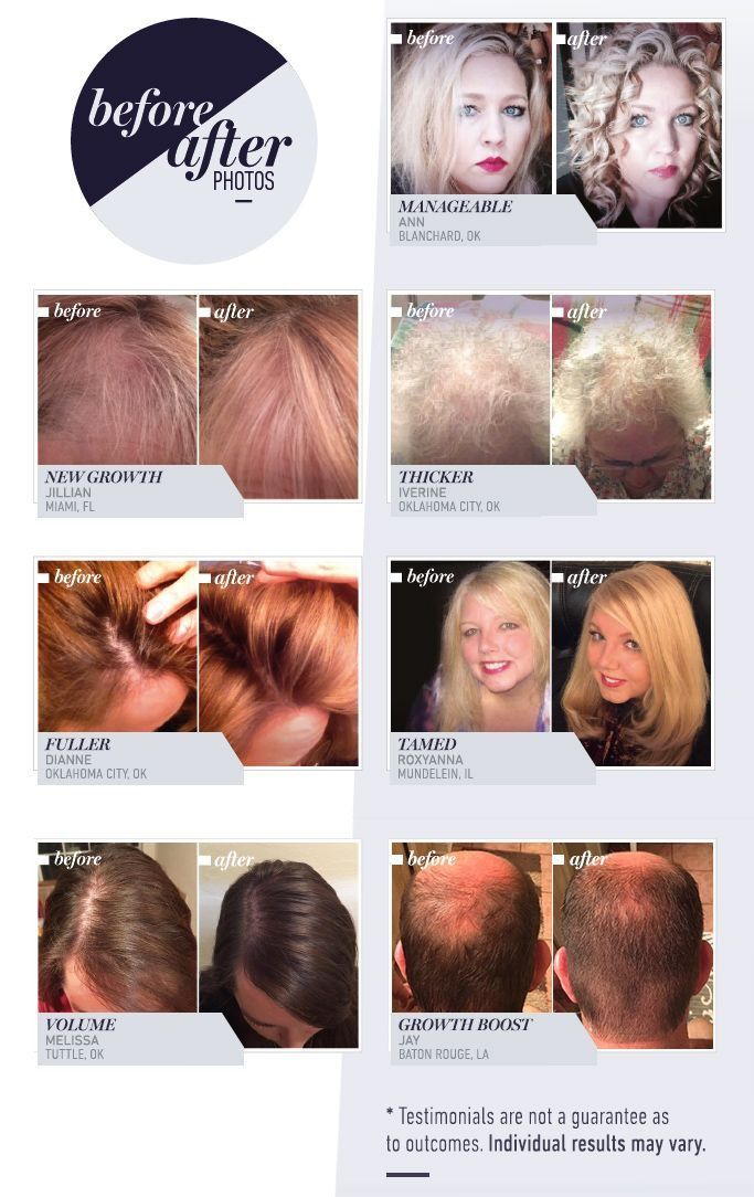 Thicker Fuller Healthier Hair Helps Grow Hair Faster And Longer