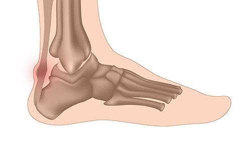 Origine de la Tendinite du tendon d'Achille