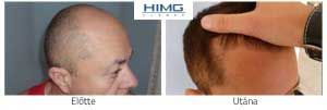 hajátültetés előtt után ár eredmény