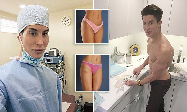 Human Ken doll Justin Jedlica creates the world's first THIGH implants