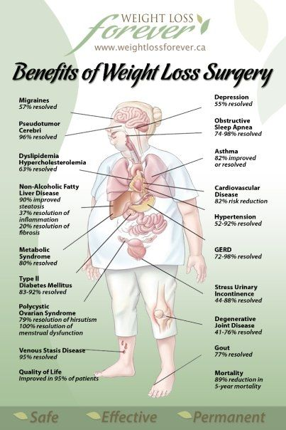 Benefits of Weight Loss Surgery  Find Out If You Are A Candidate for Weight Loss Surgery www.amiacandidate.ca