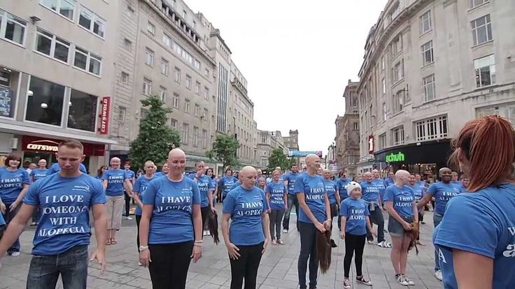 """Liverpool Alopecia Flashmob- """"Alopecia UK awareness campaign. Stay to the end for the surprise twist!"""""""