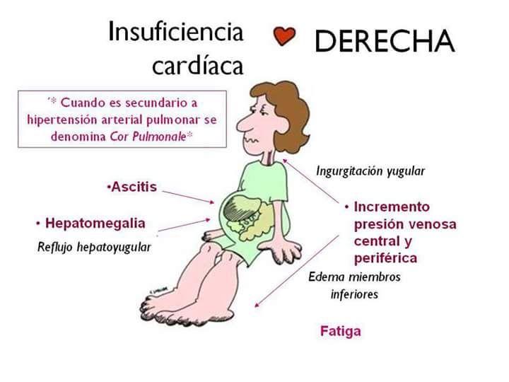 Signos y síntomas claves en la insuficiencia cardiaca