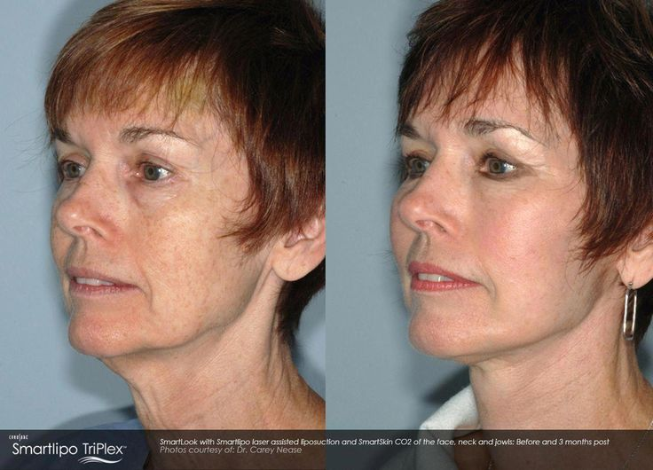 Smartlipo™ laser liposuction before and after results. #tattooremovalbeforeand…