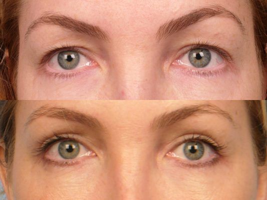 How To Get Rid Of Skin Tags On Eyelids Naturally