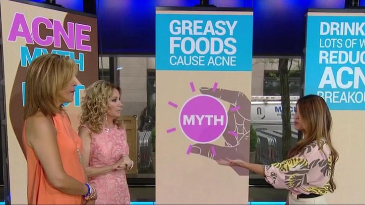 """Do greasy foods really cause acne? Kathie Lee and Hoda welcome dermatologist Sandra Lee - better known as """"Dr. Pimple Popper"""" on YouTube - who explains what you need to know to get rid of pimples. For instance: She says greasy food will cause acne only if you rub it on your face!"""