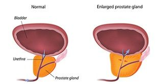 Prostate gland is the part of male's reproductive system. Prostate enlargement is a condition that affects older men. However, it's not a serious threat to their life. It wraps around the urethra between the bladder and penis. It produces the fluid that carries sperm during ejaculation. http://www.nutritionforest.com/blog/prostate-enlargement-causes-treatment/
