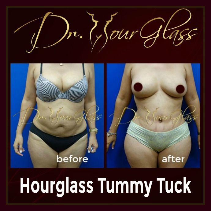 She's very confident to show off her new body after an Hourglass Tummy Tuck procedure performed by Dr. Hourglass. Well, you will notice that it did eliminate imperfections on her abdomen & help her achieve not only a flat abdomen but also a sexier version of herself.