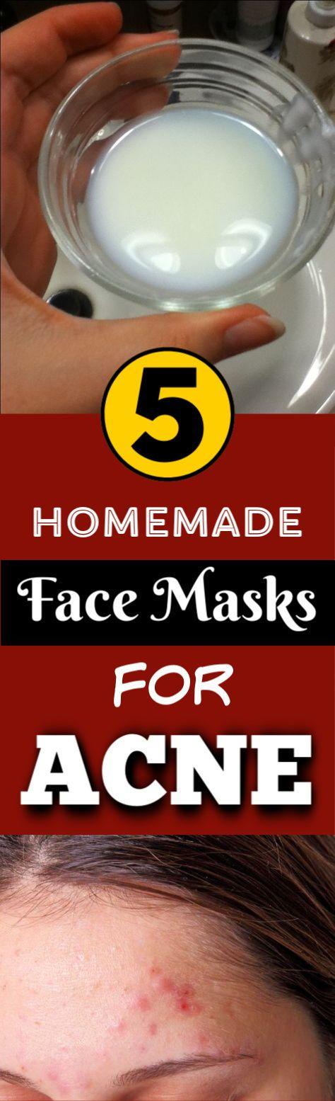 DIY face mask for acne – 5 best homemade face masks