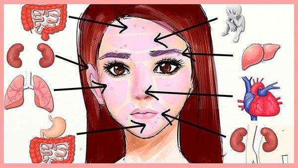Técnica de Mapeamento - Causa das acnes As temidas espinhas podem ser causadas não só por problemas hormonais ou estresse, mas também por fatores ambientais, hábitos alimentares ou algum problema interno do corpo.   Através da chamada Técnica de mapeamento, pode-se diagnosticar a causa das acnes ao analisar o local onde aparecem as espinhas na área do rosto.  Essa técnica é popular na medicina chinesa e hoje está sendo muito usada pelos dermatologistas. Veja o post no Blog Vaidosas de Batom