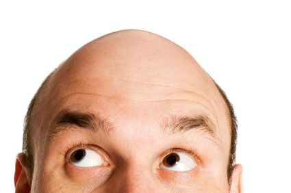 ¿Qué es la alopecia androgenética?