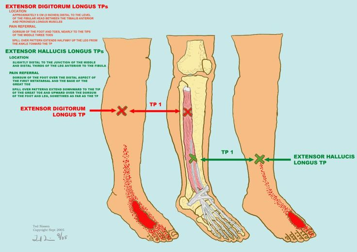 The 10 Best Extensor Hallucis Longus Images On Pinterest Massage