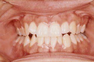Teeth Whitening Procedure at Home