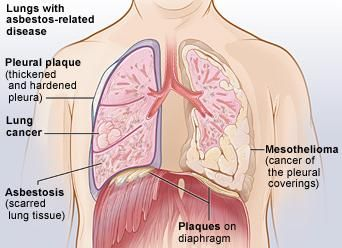 Asbestosis Causing Danger Zones At home And At Work Mesothelioma And Asbestosis Invades Your