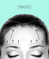 Forehead lift is a plastic surgery procedure which can improve the appearance of your forehead by tightening excess loose skin and modifying drooping brows.