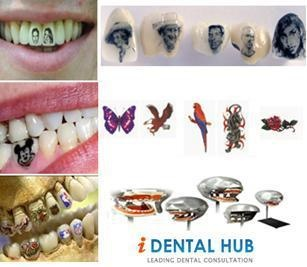The concept of decorating or enhancing teeth is actually quite ancient. The prac...