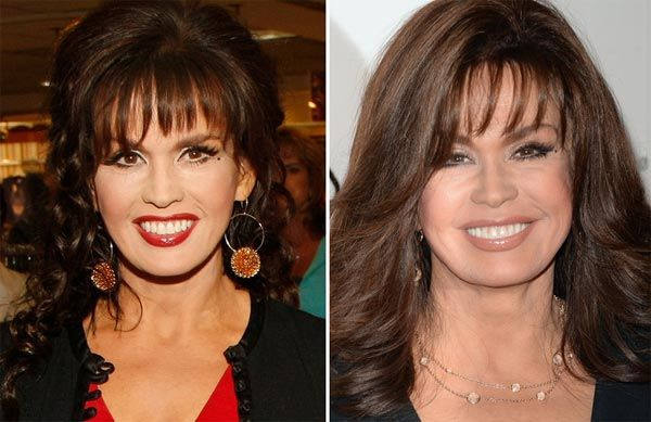 Marie Osmond Plastic Surgery Before & After - http://plasticsurgerytalks.com/marie-osmond-plastic-surgery-before-after/