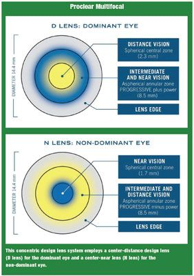 Review of Optometry® > Continuing Education > New Options for Patients with Astigmatism and Presbyopia