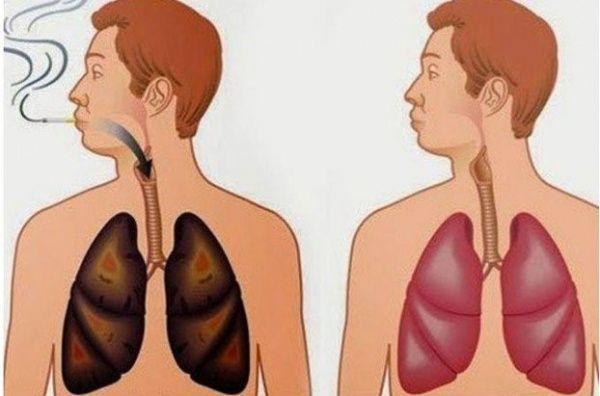 Limpian eficazmente sus pulmones de nicotina y otras sustancias nocivas - http://rapidobonitoybarato.com/limpian-eficazmente-sus-pulmones-de-nicotina-y-otras-sustancias-nocivas/