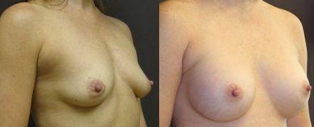 Browse brisbanesurgeons.com.au for best breast reductions.