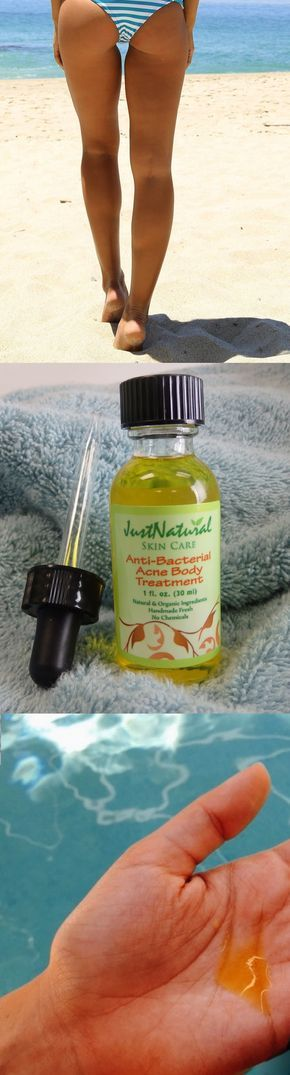 I am 22 years old and I have been embarrassed with acne on my butt for some years. A friend recommended this anti-bacterial acne body treatment, this is my second bottle and it fixed my problem completely after about 3 weeks. I noticed my skin is starting to feel softer. I also have sensitive skin, but thankfully I have no irritations. I am so happy to find this product. I can enjoy my weekends at the beach with no more embarrassing butt acne again.