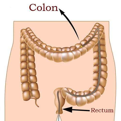 colon7