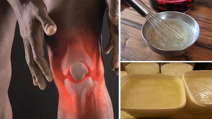 Make This Recipe and Say Goodbye to Back and Joint Pain http://homeremediestv.com/make-this-recipe-and-say-goodbye-to-back-and-joint-pain/ #HealthCare #HomeRemedies #HealthTips #Remedies #NatureCures #Health #NaturalRemedies  No one wants their body to develop weak bones or joints or to become frail. However straining yourself bumping into objects and certain bad habits can do just   Related Post  6 Proven Home Remedies for Hair Loss Young or old we love our hair donít we? Hair condition…